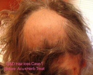 Hair+loss+Case1+before++acu%2Bherb+treatment.jpg