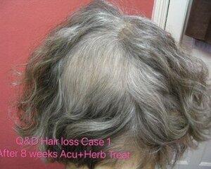 Hair+loss+Case1+after+8+weeks++acu%2Bherb+treatment.jpg