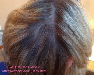 Hair+loss+Case2+after+14+weeks++acu%2Bherb+treatment.jpg
