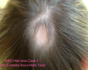Hair+loss+Case2+after+5+weeks++acu%2Bherb+treatment.jpg