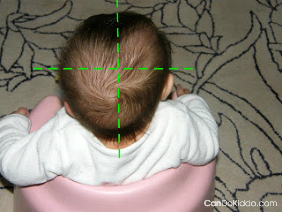 Simple ways to check baby's head for flat spots. CanDo Kiddo