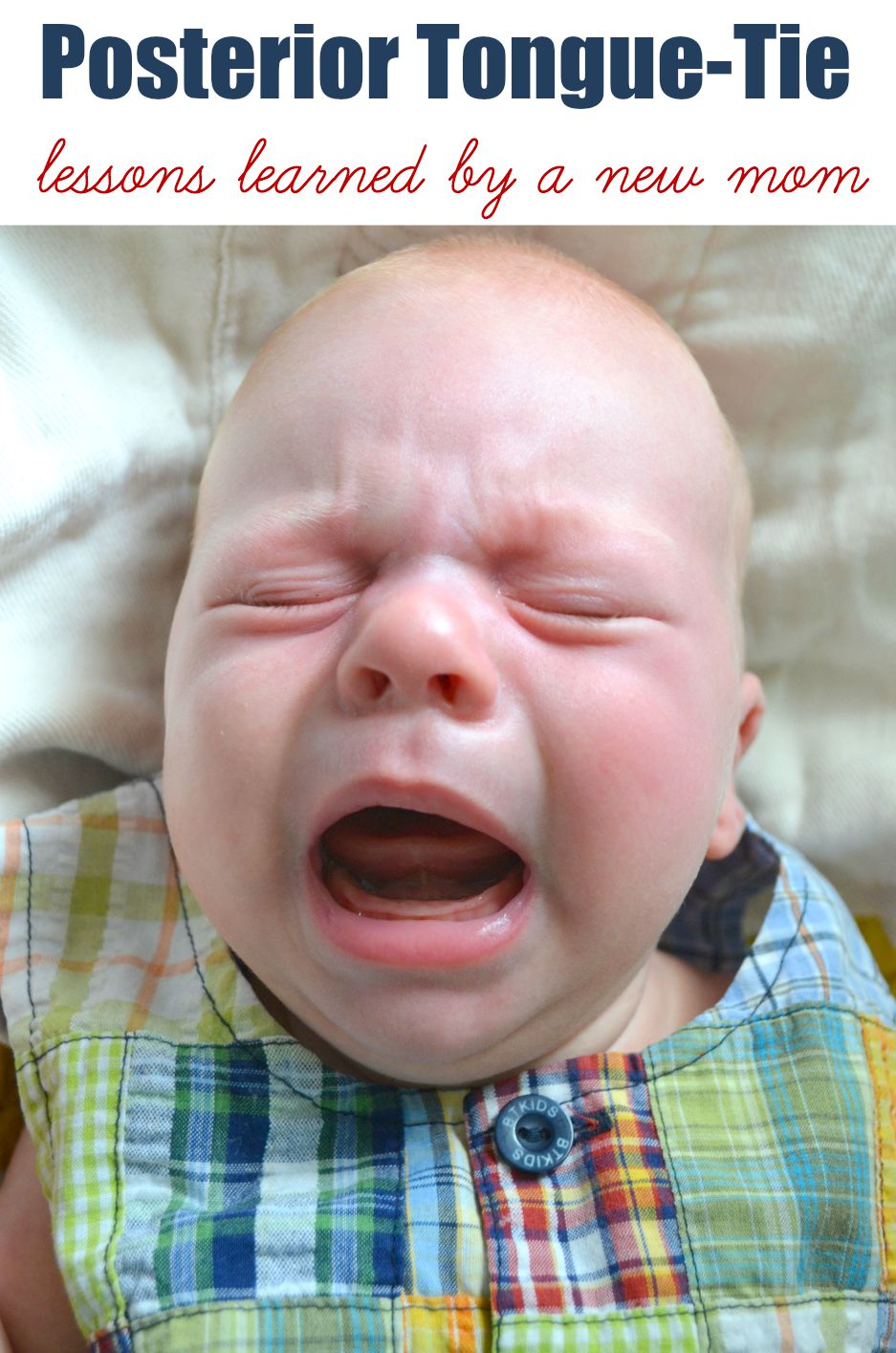 Posterior Tongue-Tie in babies - effects on breastfeeding, tongue tie repairs and more.