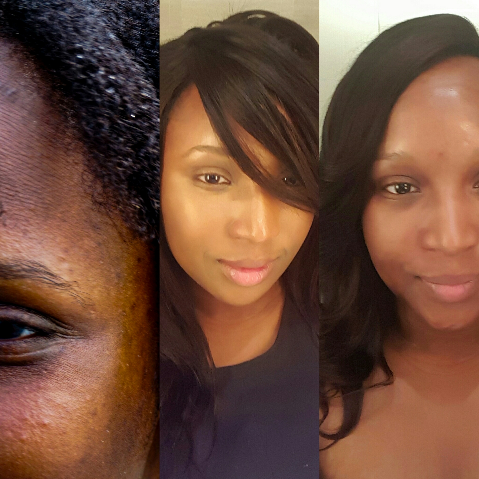 Before and after spot treatment usage.