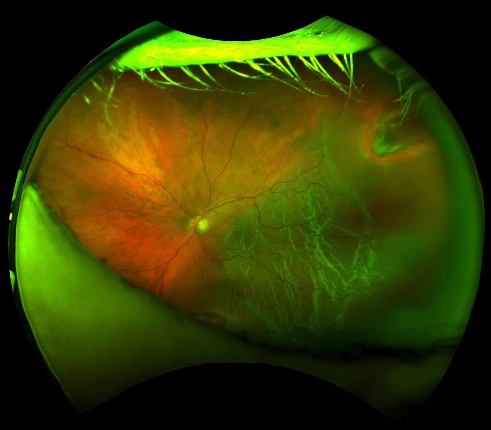 Large Horseshoe Retinal Tear and Detachment