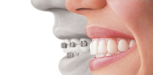 SmilingTeethCosmeticImplantCentreMumbai_1669.jpg