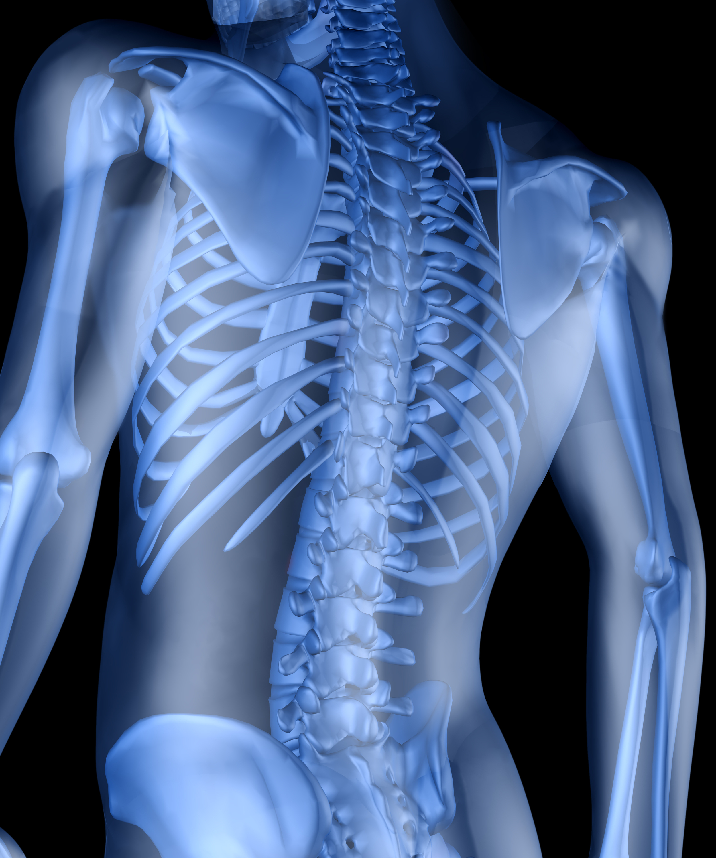 A spinal xray is a vital part of your overall evaluation.