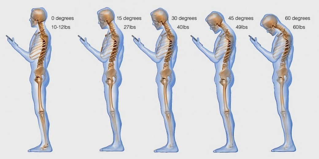 Text Neck Syndrome
