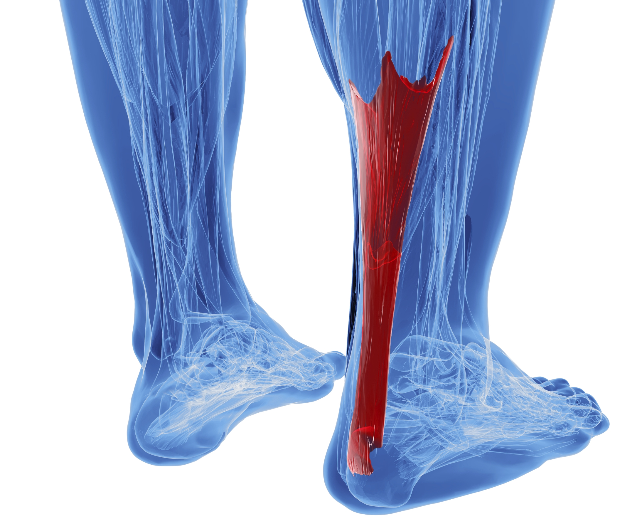 Achilles Tendinitis is common injury resulting from overuse.