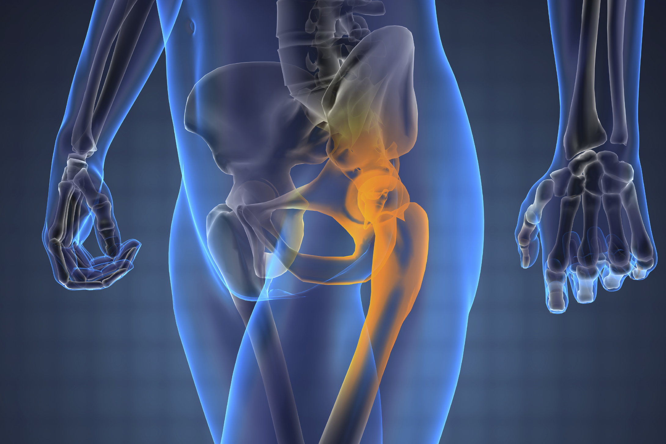 Imbalance and misalignment causes wear and tear on the hip joint