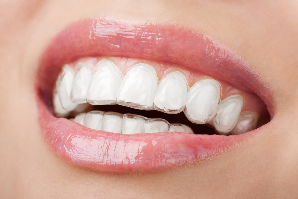 An Invisalign in use.