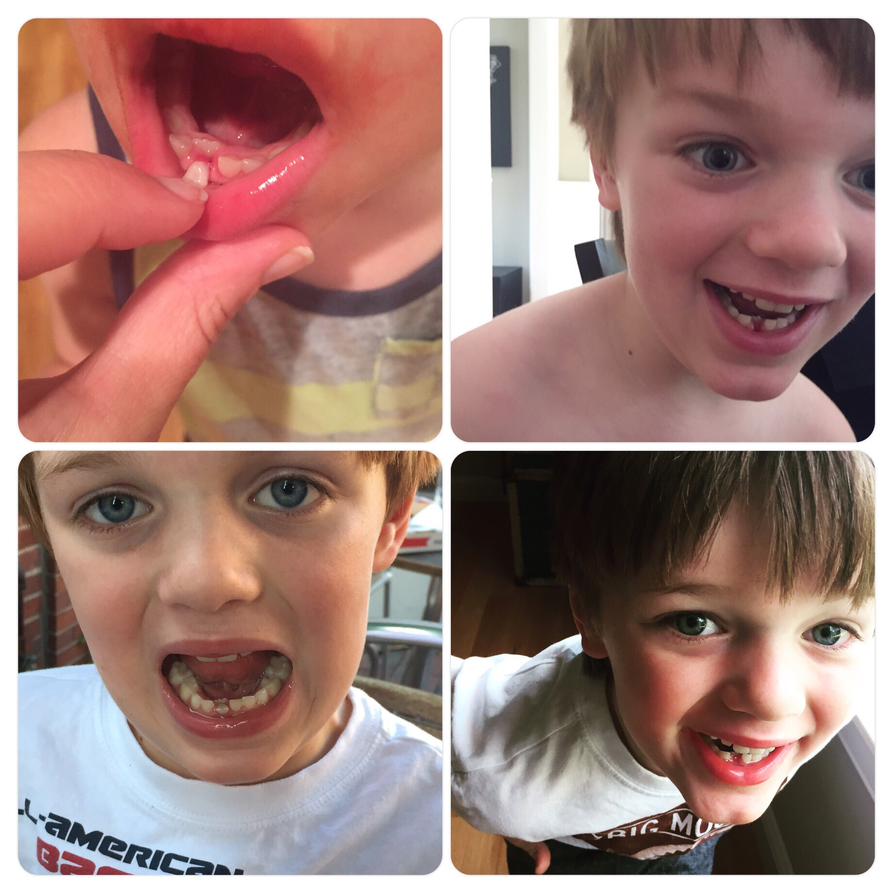 Tooth business. Nicholas pulled it out himself.  Going rate $3.50.