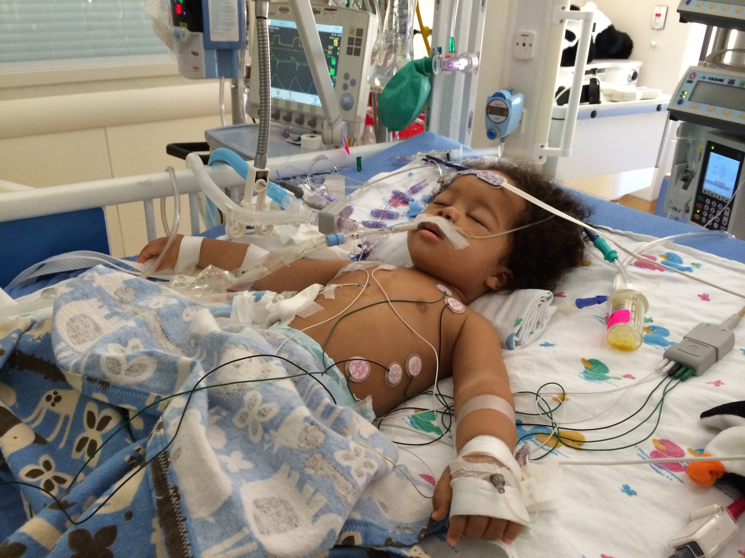 Elliott: Day of diagnosis: July 24, 2014 (intubated, chest tube (to drain fluid around lungs), pericardial drain (to drain fluid around heart)...fully monitored.  While this photo is difficult to look at, seeing him struggle to breathe was much worse.