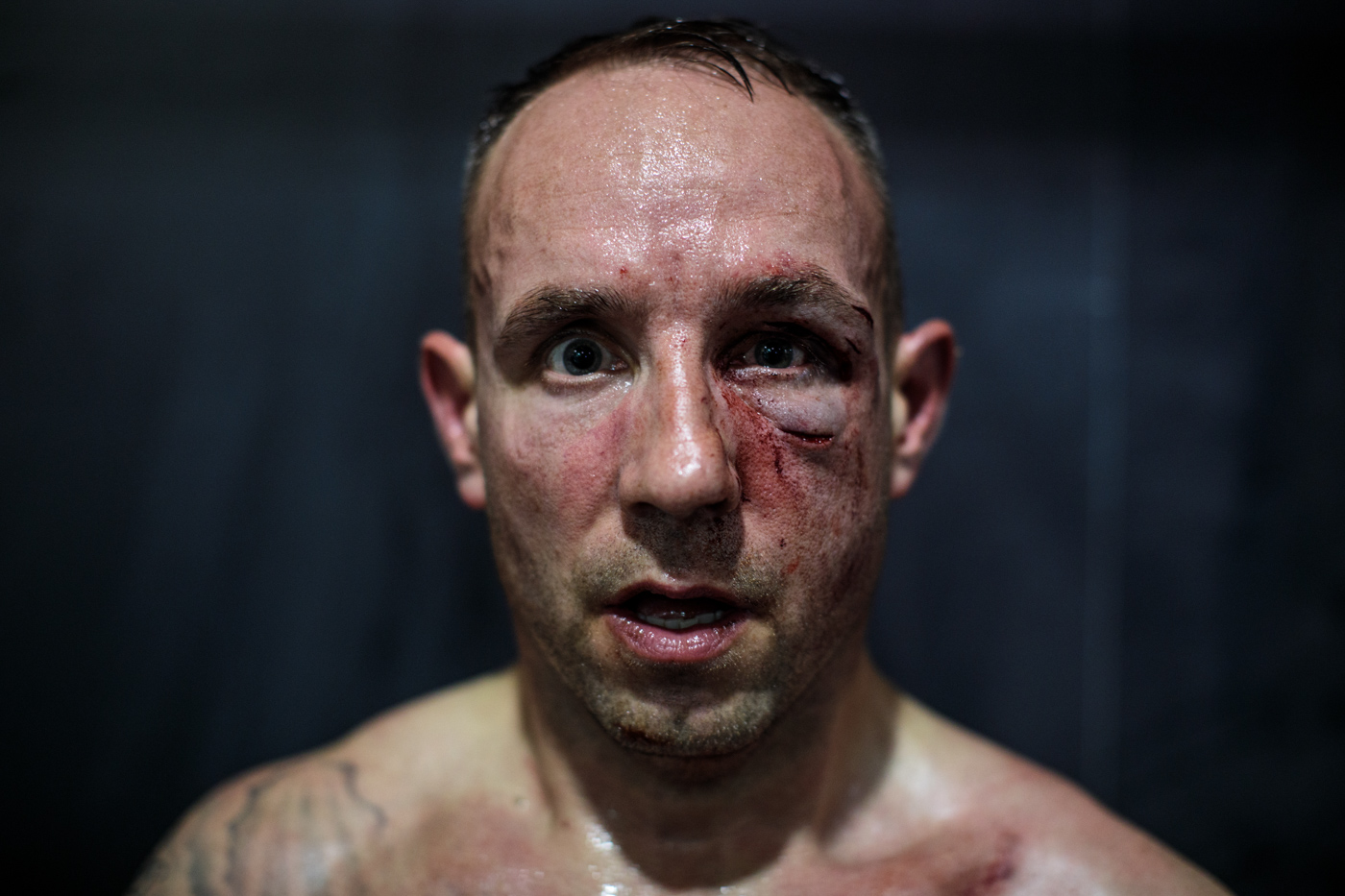MANCHESTER, ENGLAND: Bare-knuckle boxer Paul Stredder, 35 from the Wirral, poses for a photo after his fight at an Ultimate Bare-Knuckle Boxing (UBKB) event at Bowlers Exhibition Centre on August 4, 2018.