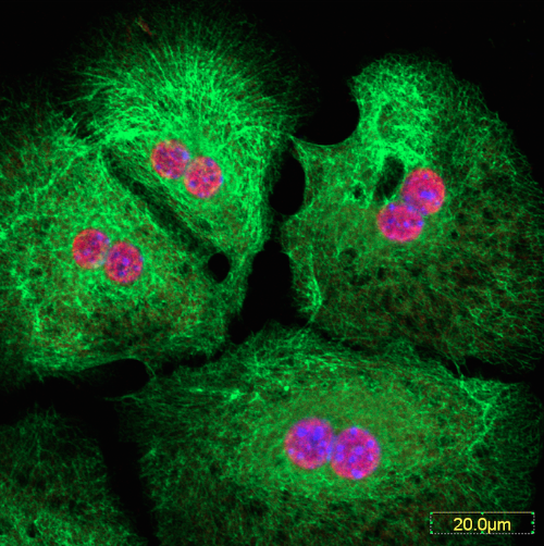 Hepatocyte, liver cell, stain. Keratin in green and Nuclei in red/blue. Photo by Dr. Natasha Snider.