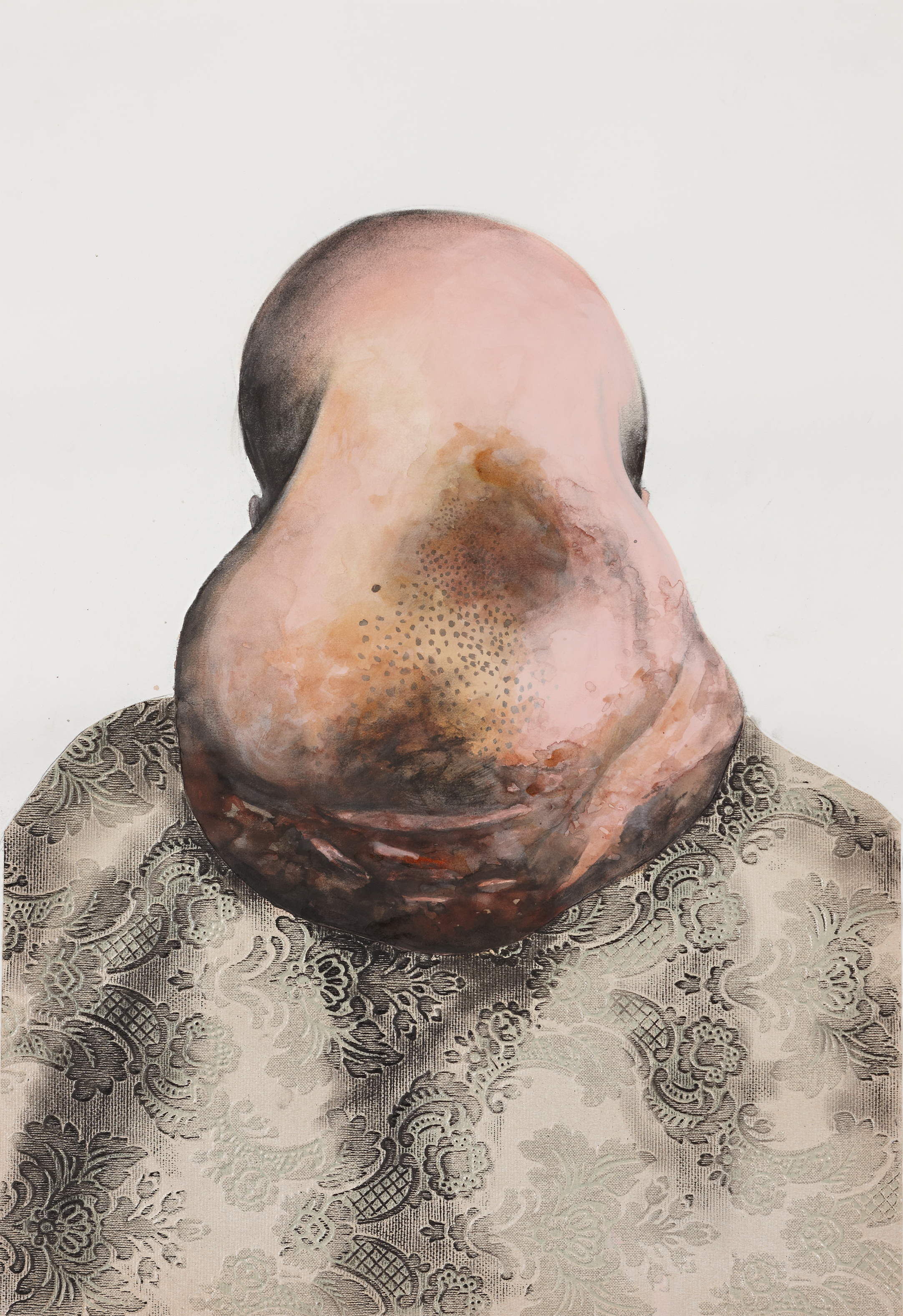 Man with large lump on head