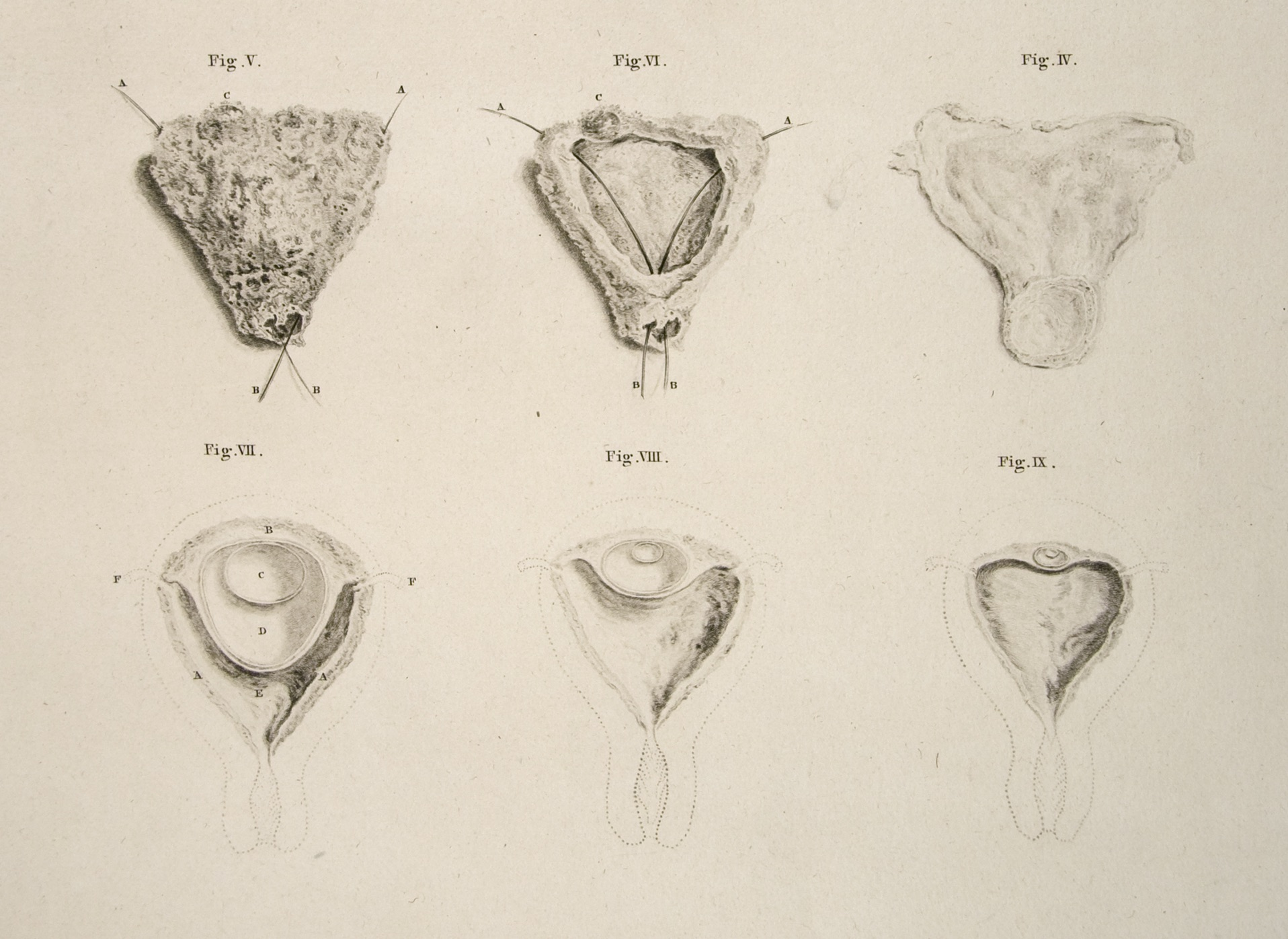 """Six so-called """"conceptions,"""" still invisible to the eye, organized as though they were the same conception. They are arranged in reverse order, retreating towards the moment of generation.Hunter, Anatomy , 34.4-9. Image courtesy University of California, Los Angeles."""