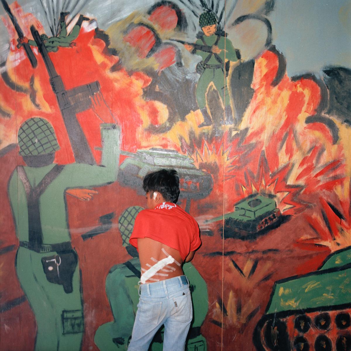Injured Child, El Salvador 1986