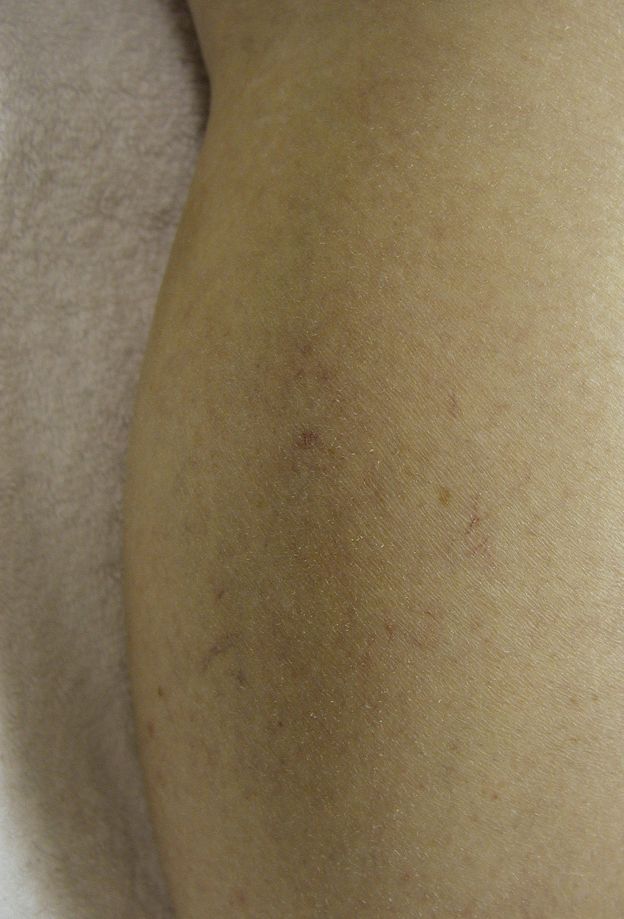 After  Thread Vein Removal