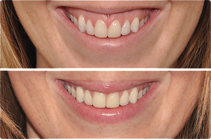 gummy-smile---before-and-after.jpg