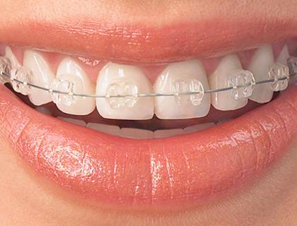 braces2.jpg