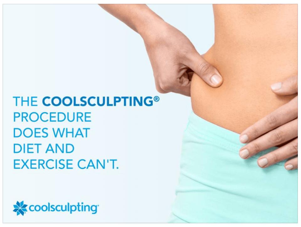 Coolsculpting-1.png