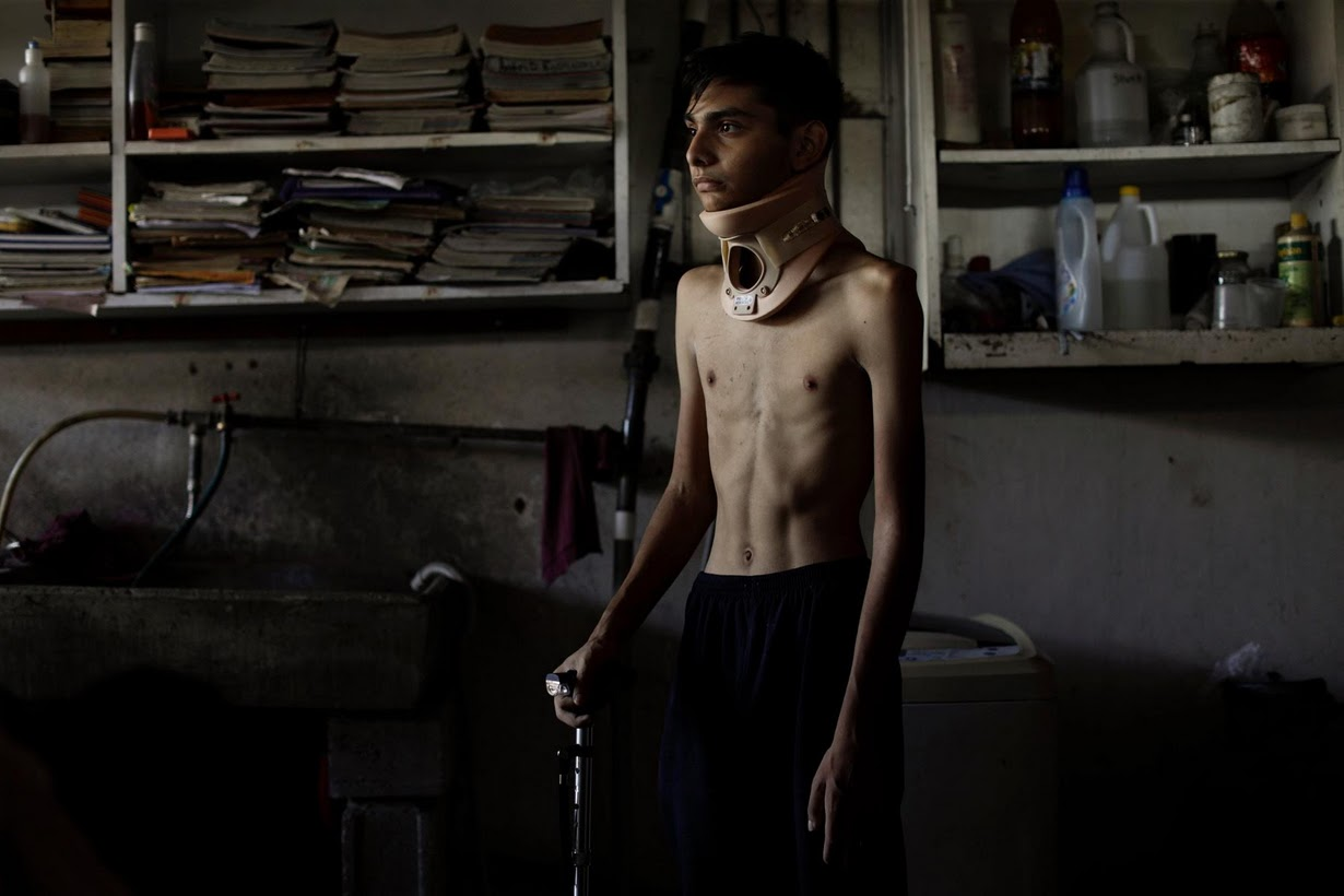 Jofre Rodriguez, 18, sufrio fractura de quijada por impacto de bala el 26 de junio / Foto: Reuters