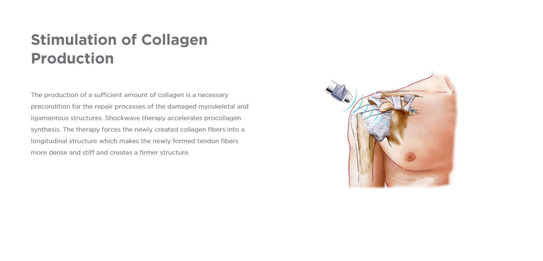 Collagen Production.PNG