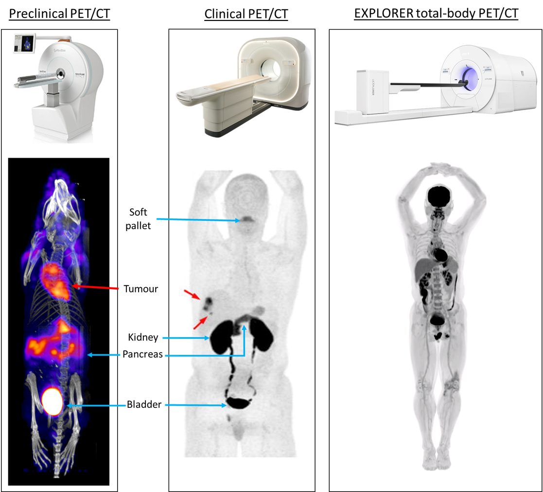 Figure 4. Preclinical versus human PET/CT imaging.  Preclinical PET/CT allows whole-body visualisation of the radiotracer's biodistribution, dynamically in small rodent models. In current clinical PET/CT systems, whole-body imaging is not possible as the whole body of the patient can not fit within the axial field of view of the scanner (usually 22 cm). This means only static scans, looking at the radiotracer distribution at a specific time, can be viewed. The clinical PET/CT image shown is a composite image from at least 2 or more bed positions. Developments in technology (and a lot of money) have led to the first total-body PET scanner – the EXPLORER.