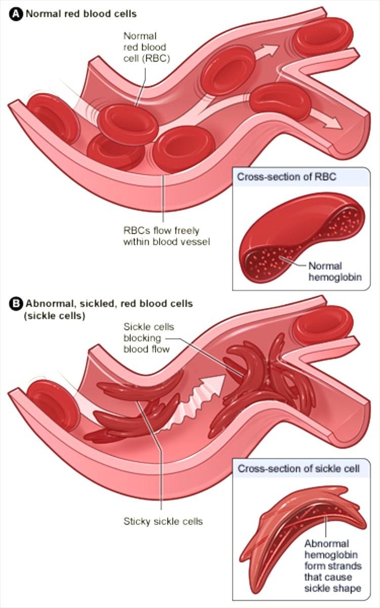 Figure 1: Diagram of sickle cells causing vaso-occlusive crisis