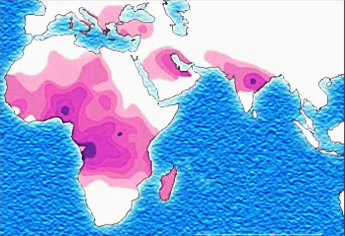 Figure 3: Sickle-cell disease distribution