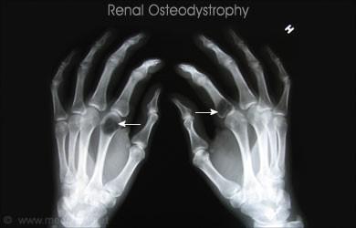 Figure 5: Renal Osteodystrophy X-ray [24]