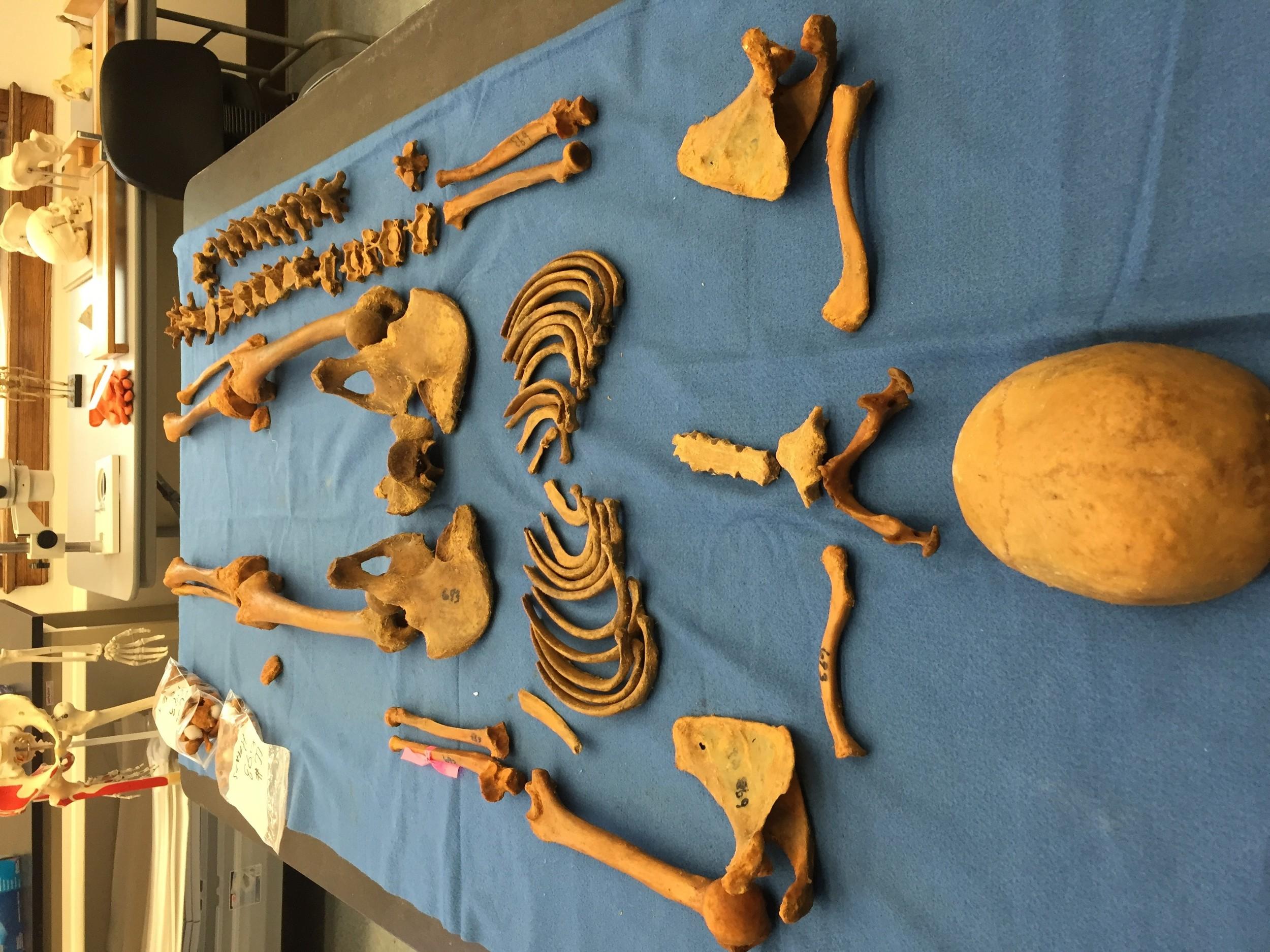 Figure 8: Defleshed Cadaver #693