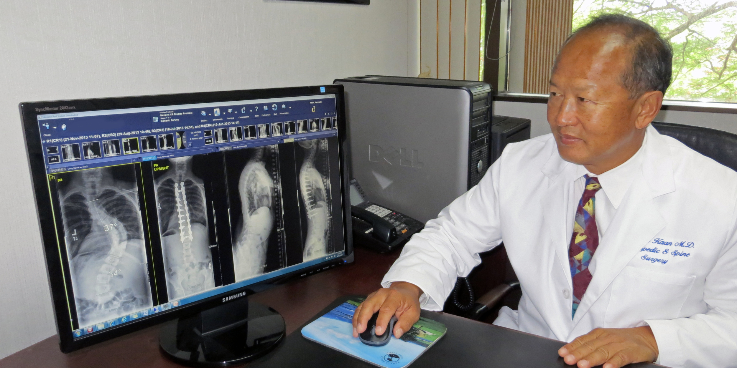 Dr. Kaan views an imaging study in his office, comparing his patient's post-operative results to her initial condition.