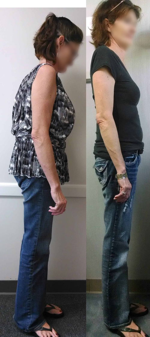 Comparison of patient before and after operation. Note improved posture.