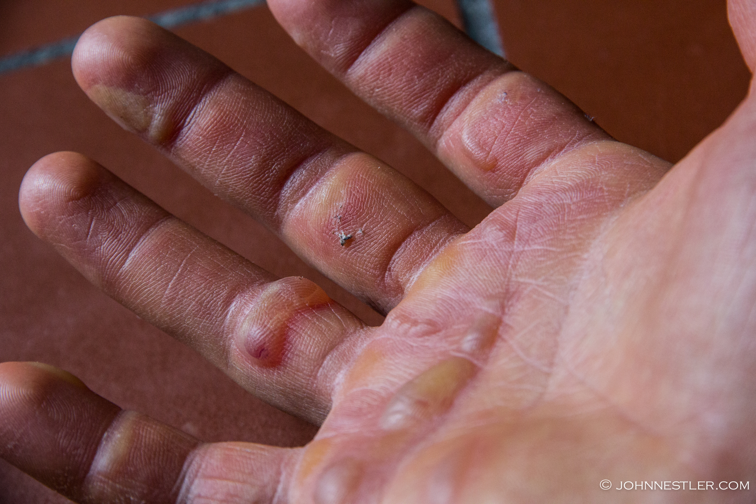 Painfully blistered hands after the race. Don't let this happen!