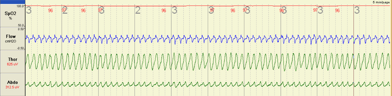 Normal Sleep at Sea Level This image shows me breathing normally whilst sleeping at sea level. The red line shows oxygen levels in the blood, the blue line is airflow through the nose, and the green lines show breathing effort as represented by movement of the chest and abdomen.