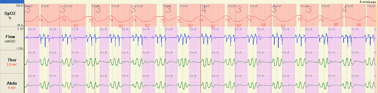 Disrupted Breathing During Sleep at High Altitude In contrast to the sleep at sea level, my breathing was totally disrupted whilst sleeping at high altitude at the Pyramid. The red line shows profound fluctuations in oxygen levels, whilst the blue and green lines represent a distinct waxing and waning pattern of breathing.