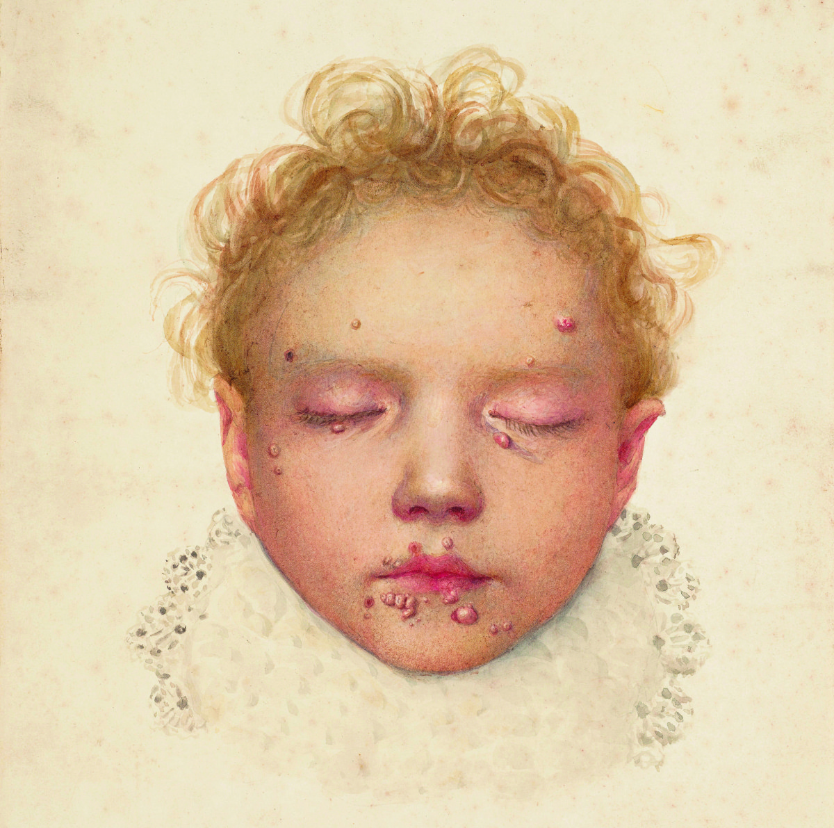 The head of a child with blisters and other lesions affecting the skin. Photograph: Wellcome Library, London