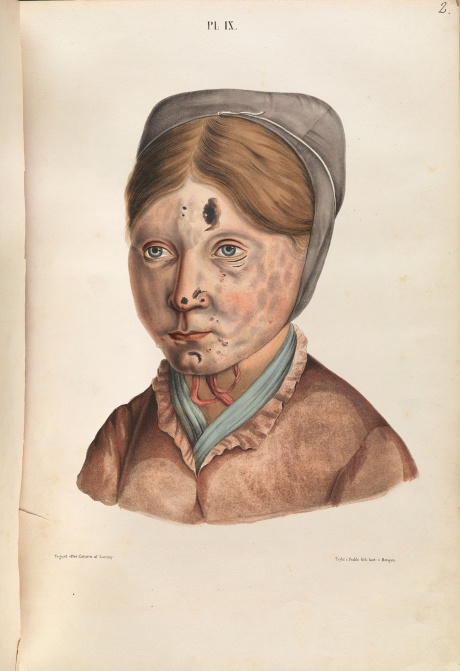 The face of a 13-year-old girl with leprosy. Photograph: Wellcome Library, London