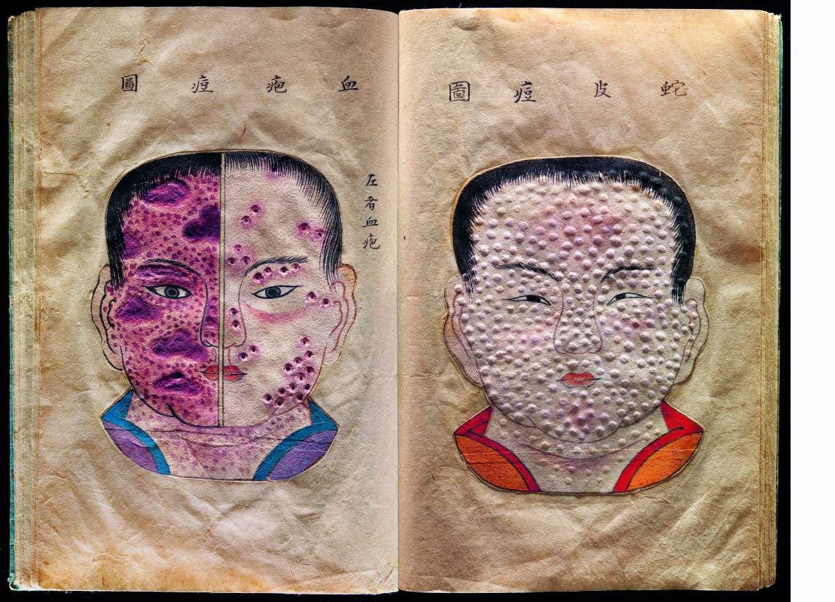 Hand-drawn and textured pages from a rare Japanese treatise on smallpox called The Essentials of Smallpox written in the late 17th or early 18th century by the Japanese doctor Kanda Gensen. Photograph: Wellcome Library, London