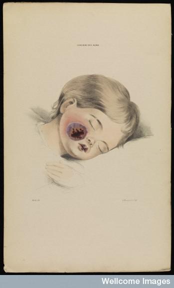 Cancrum oris noma, child Robert Willis, 1841