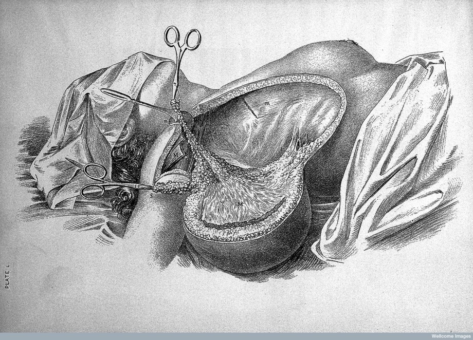 Cancer of the Breast, Field Operation, just before the final cut (Wellcome Library).