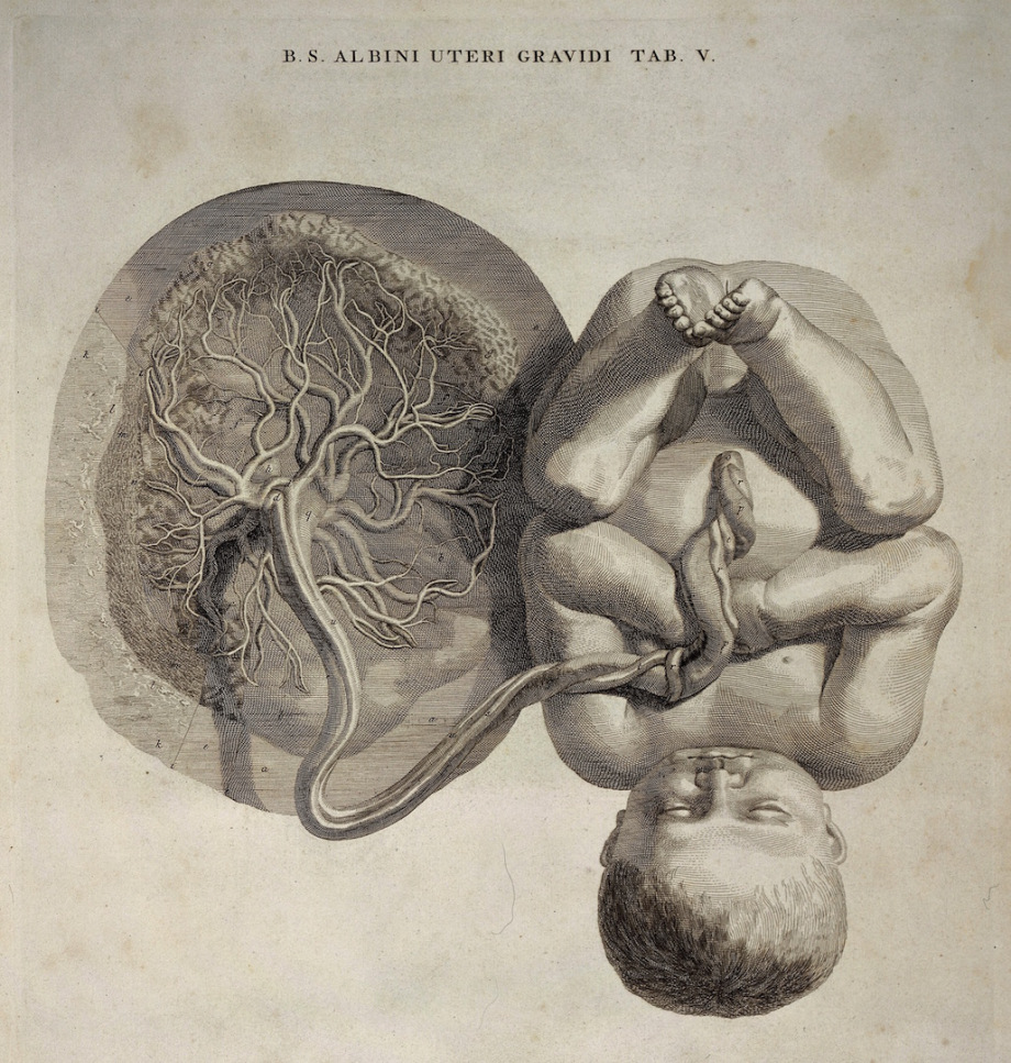 Foetus attached to the umbilical cord and placenta (Wellcome Library).