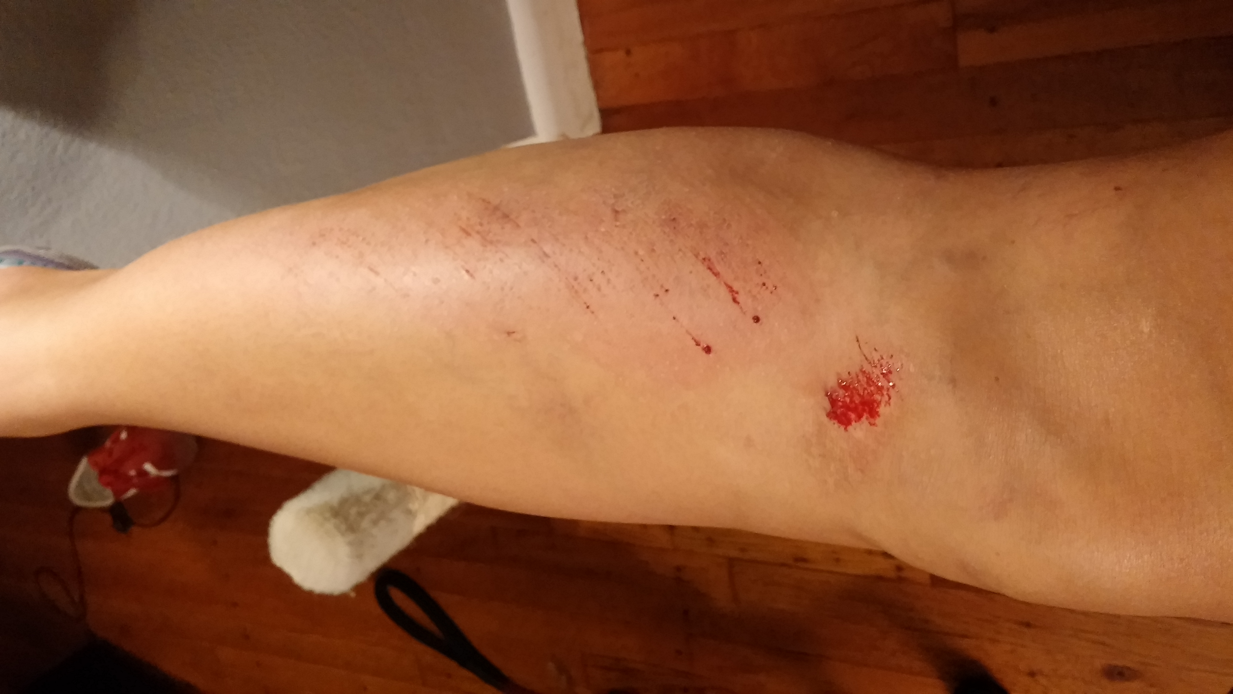 Hey, look! The new scar will be on top of the old scar! Sweet! Also, I had to delete the first photo I took because the dog was trying to lick the blood off my leg.