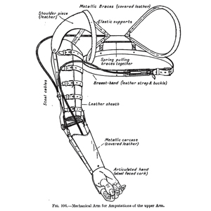 """""""Mechanical Arm for Amputations of the Upper Arm,"""" Jules Amar, 1918."""