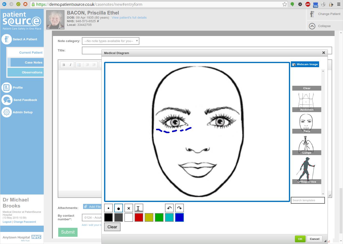 eCaseNotes template sketching