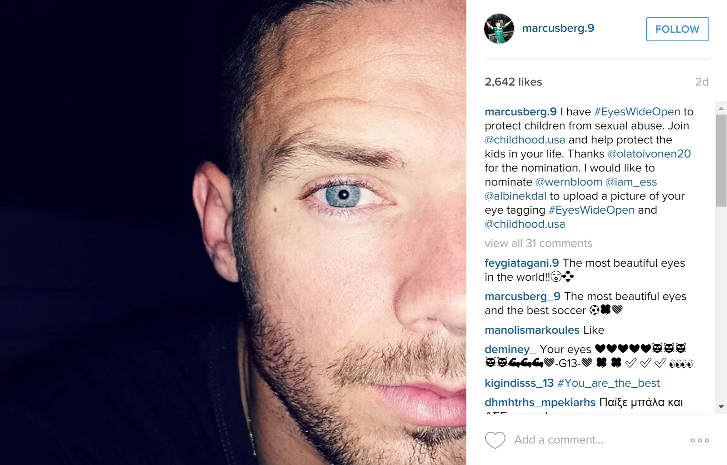 #EyesWideOpen Post by Soccer Star, Marcus Berg
