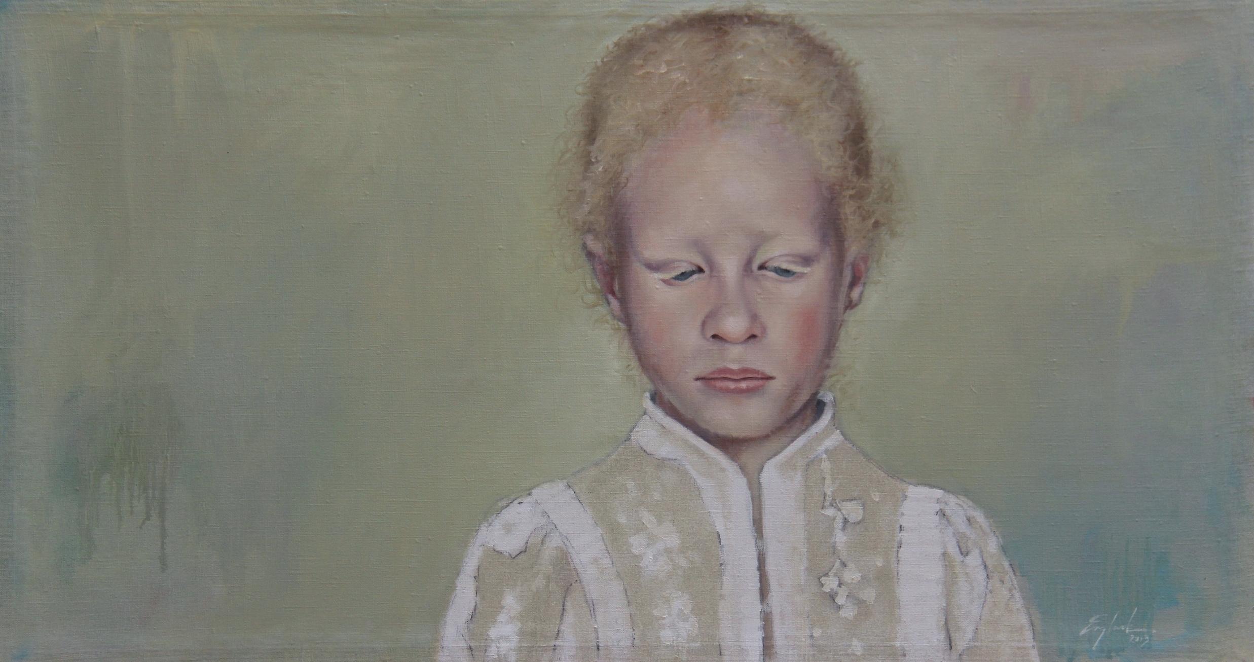 Albino Girl 2013