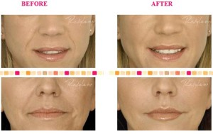 Restylane Silk in the lips