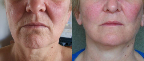 Ultherapy around the mouth